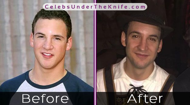 Ben Savage's Nose Job? Boy Meets World of Plastic Surgery?