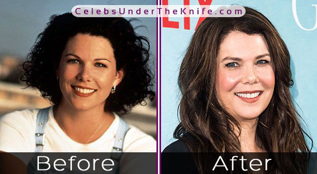 Lauren Graham's Nose Job? Check out the Before + After Photos