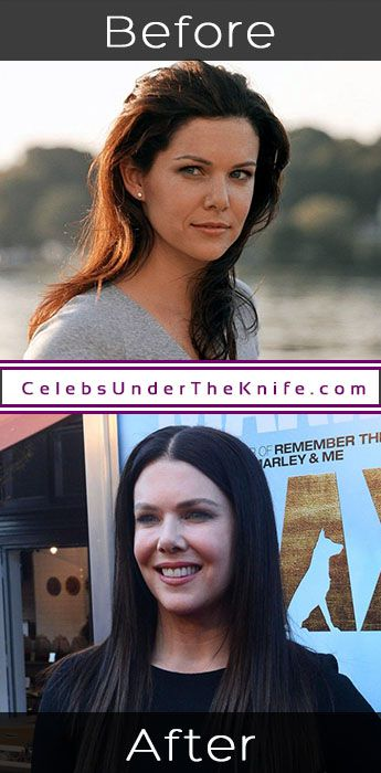 Lauren Graham Plastic Surgery