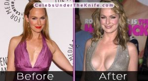 Melora Hardin Before After Photos