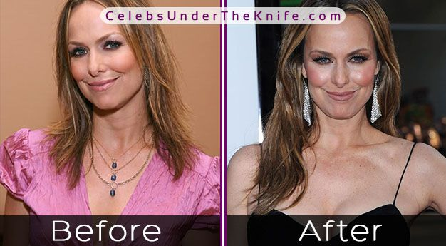 Melora Hardin Cosmetic Procedure Results