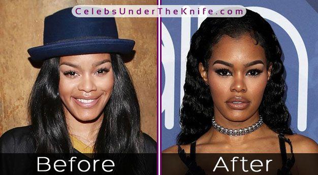 Teyana Taylor's Wonderful Nose Job – Before + After Pics