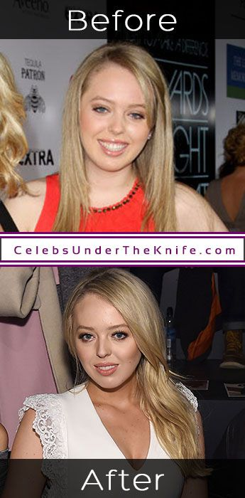Tiffany Trump Physical Enhancements