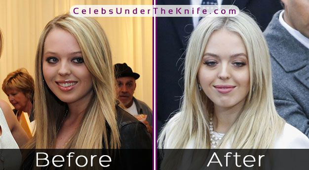 Tiffany Trump's Plastic Surgery? President's Daughter taken the plunge?
