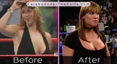 Stephanie McMahon [WWE DIVA] Got A Boob Job! Check Out The Pics