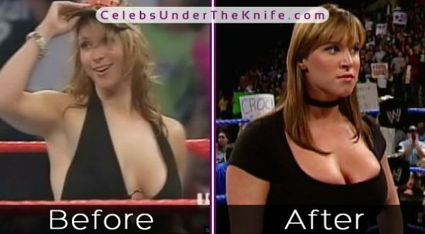 Stephanie McMahon [WWE DIVA] Got A Boob Job! Check Out The Pics