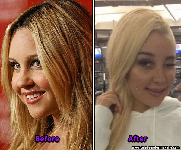 Amanda Bynes Nose Job Plastic Surgery Before After
